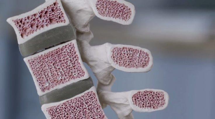 Microlattice o metal mais leve do mundo